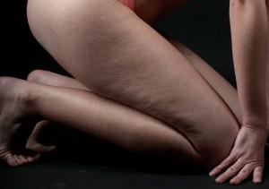 cellulite-peau-d-orange